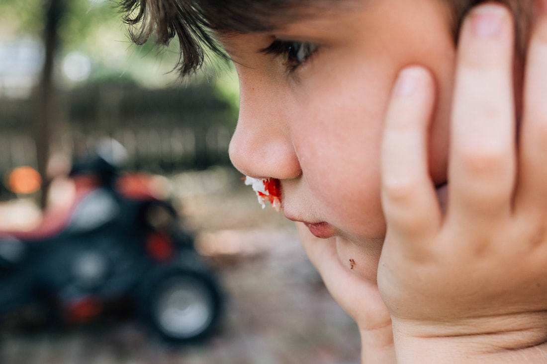 little boy with bloody nose